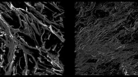 Smagliature al microscopio: ecco cosa accade alla nostra pelle