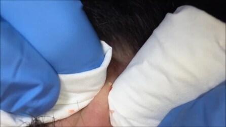 Ecco come viene effettuata la pulizia del viso con ago cosmetico