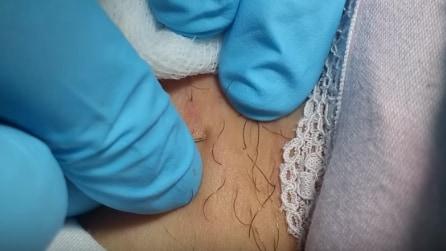 Come rimuovere i peli incarniti con l'ago cosmetico