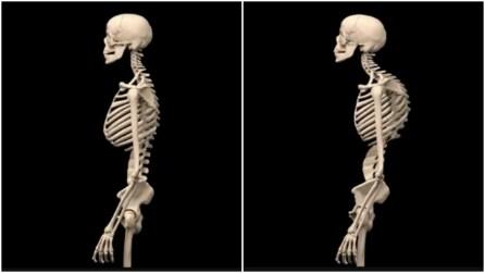 Quello che succede allo scheletro e alla schiena se si ha una postura scorretta