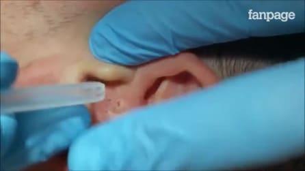 Como remover cravos dentro do ouvido? O método profissional e eficaz