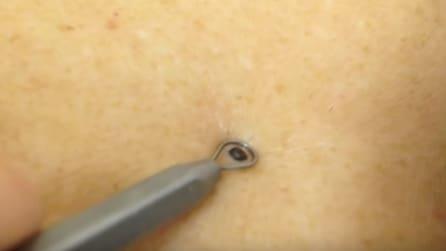 Preme l'attrezzo intorno al punto nero, disgustoso ciò che accade