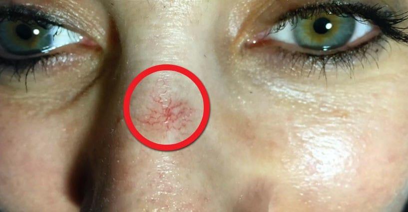 può vedere le vene negli occhi