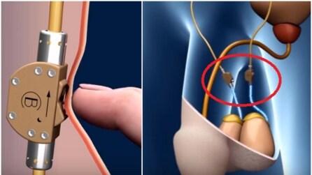 Bimek SLV, l'interruttore che ferma lo sperma contro le gravidanze indesiderate