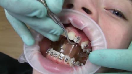 Ecco come viene montato l'apparecchio ortodontico
