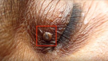 Aveva un grosso punto nero sull'occhio: ecco come avviene la rimozione