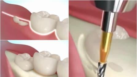 Ecco come vengono estratti i denti del giudizio