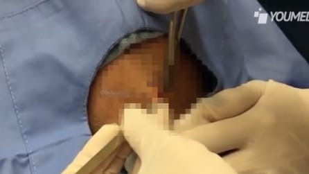 Médica pensava que era um cisto mas na hora da extração veja o que sai