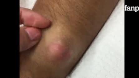 Homem tem um grande cisto na pele: durante a cirurgia algo nojento acontece