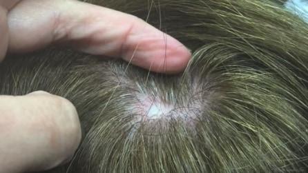 Sente un fastidio sulla testa, il medico estrae una cisti sotto i capelli