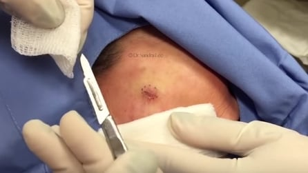 Una piccola cisti sulla guancia: rimozione e punti di sutura