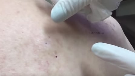 Pulizia del corpo, guardate cosa viene fuori quando schiaccia questo grosso punto nero