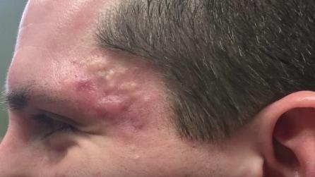 Ha la pelle rovinata dall'acne, ecco come interviene la dottoressa
