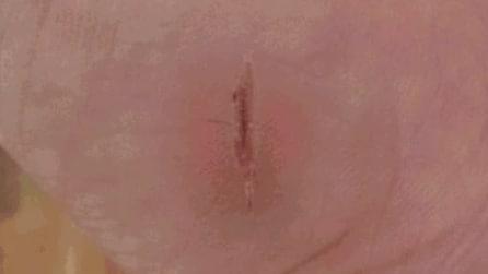 Il lento e inesorabile processo della cicatrizzazione di una ferita
