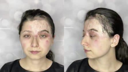 Un'ustione le ricopre il viso, vuole vedersi diversa: la make up artist la trasforma incredibilmente