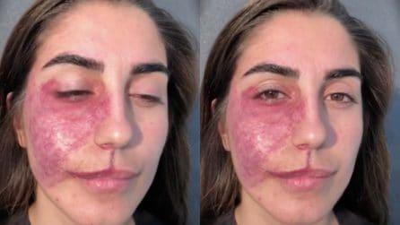 Una bruciatura le ricopre il volto, vuole vedersi diversa: il make up artist realizza il suo desiderio