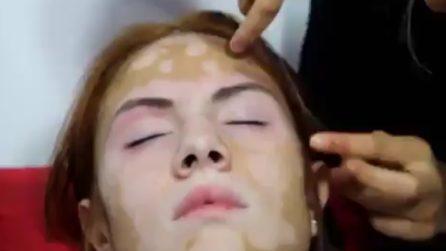 Sul suo volto c'è la vitiligine: la trasformazione è incredibile
