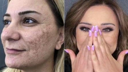 I segni lasciati dall'acne le ricoprono il viso: con il trucco ritrova il sorriso
