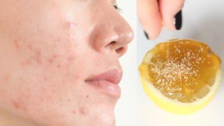 Scrub viso fai da te: naturale e ottimo per eliminare le impurità