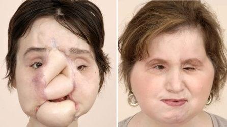 Storico trapianto di faccia durato 31 ore dona una seconda vita a Katie