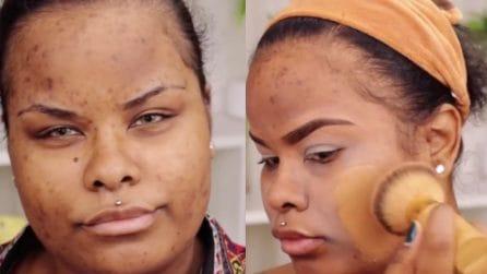 Inizia a truccarsi per coprire l'acne: la sua tecnica è perfetta