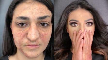 Non si è mai sentita bella a causa delle cicatrici sul suo volto: la trasformazione la commuove
