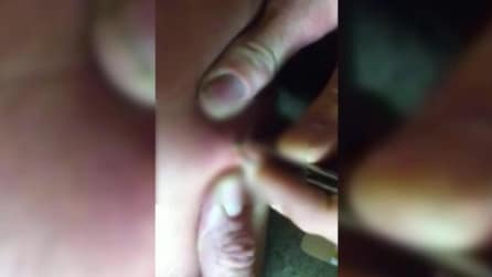 La puntura di ragno è infetta: ciò che viene fuori dalla ferita è disgustoso