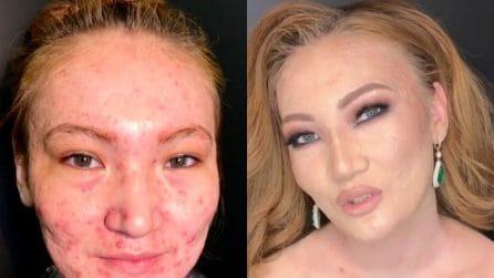 La magia del trucco: ecco in che modo la make-up artist nasconde l'acne