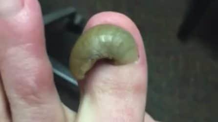 L'unghia del piede è lunghissima: le immagini disgustose dell'intervento medico