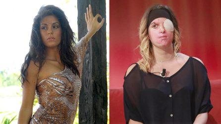 Sfregiata dall'acido, mostra il suo volto in TV: Gessica Notaro è un esempio per tutti