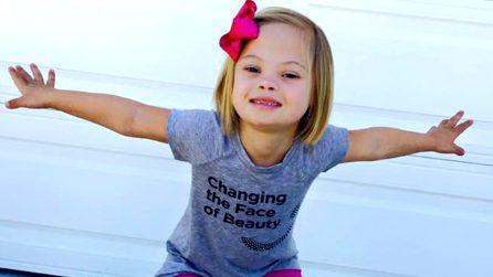 A 7 anni la Sindrome di Down non le fa paura: il coraggio di Sofia