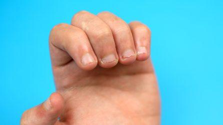 4 modi per non mangiare più le unghie