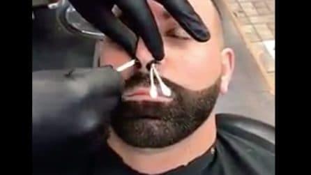 """Infila dei bastoncini nel naso: un """"trattamento di bellezza"""" doloroso"""