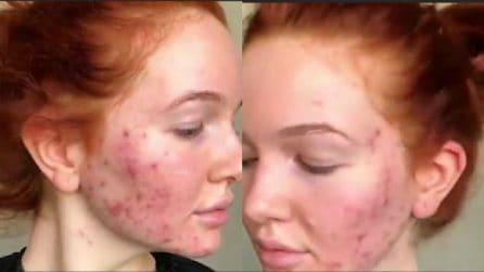 La ragazza ha problemi di acne: la sorprendente trasformazione