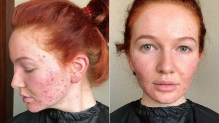 Ha la pelle rovinata dall'acne: la truccatrice la rende irriconoscibile