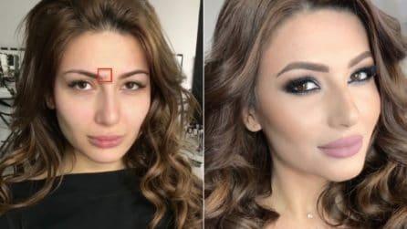 Ha un grosso brufolo sul viso: con il makeup le imperfezioni spariscono completamente