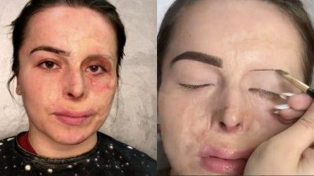 La ragazza ha un'ustione sul volto: la straordinaria trasformazione