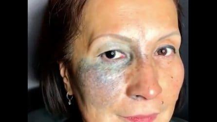 """Una """"voglia"""" enorme le ricopre metà viso: la fantastica trasformazione grazie al make-up"""