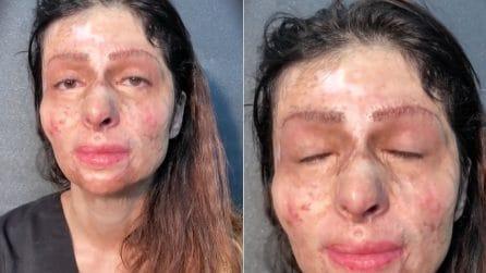 Ha un'ustione sul volto e non si è mai truccata: l'emozionante trasformazione
