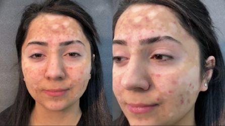 La vitiligine le copre il volto e vorrebbe vedersi diversa per una volta: la stupenda trasformazione