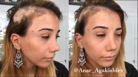 Ha una lunga cicatrice e vuole vedersi diversa per una volta: la bellissima trasformazione