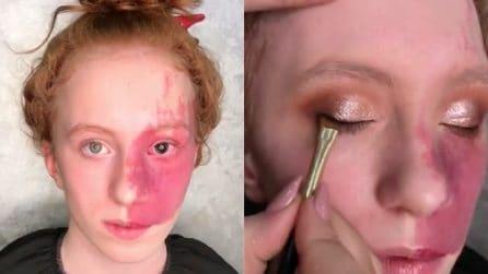 Ha un'enorme voglia rossa sul viso: un'esperta la trucca e realizza il suo sogno