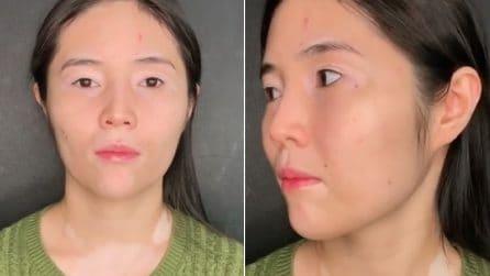 Bullizzata fin da piccola per la vitiligine, si rivolge a una truccatrice: l'emozionante trasformazione