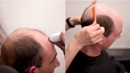 Il rimedio del barbiere contro la calvizie: la trasformazione è quasi immediata