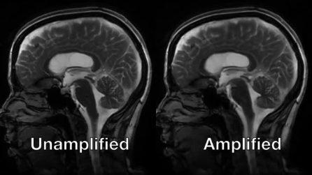 Le straordinarie immagini del cervello che 'batte' a ritmo con il cuore