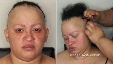 La madre è affetta da alopecia: sua figlia la trucca e la trasformazione è commovente