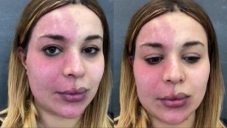 Una voglia le ricopre metà viso, vuole vedersi diversa per un giorno: il make up artist realizza il suo sogno