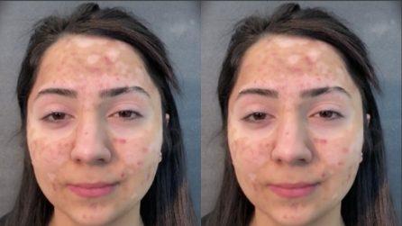 La vitiligine le copre il volto, vuole vedersi diversa per un giorno: il make-up artist la trasforma