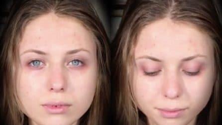 Le cancella le occhiaie e le imperfezioni della pelle: una trasformazione da urlo