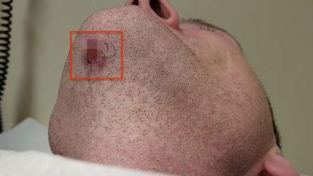 Si rade la barba: sotto il mento scopre qualcosa di impressionante